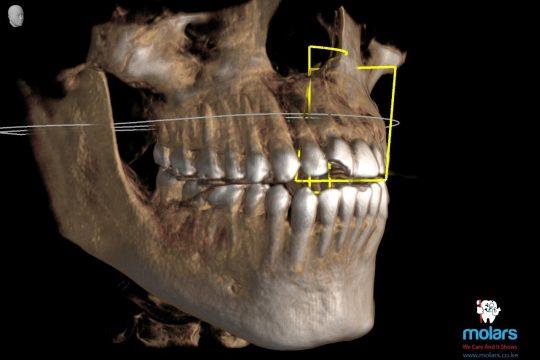 Digital CT Imaging